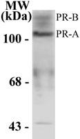 GTX13878 - Progesterone receptor