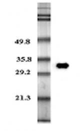 GTX13881 - Adiponectin