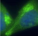 GTX14064 - Adrenocorticotropic Hormone (ACTH)