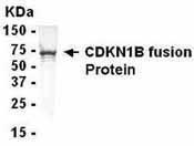 GTX14243 - CDKN1B / KIP1