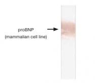 GTX14699 - Brain Natriuretic Peptide (BNP32)