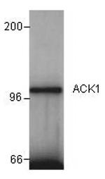 GTX14776 - TNK2 / ACK1