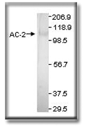 GTX14777 - Adenylate cyclase type 2