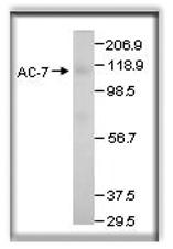 GTX14782 - Adenylate cyclase type 7