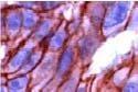 GTX15180 - Catenin beta-1