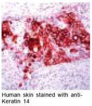 GTX15461 - Cytokeratin 14