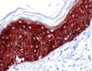 GTX15462 - Cytokeratin 14