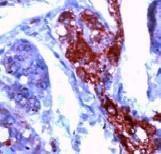 GTX15488 - Neuron specific enolase