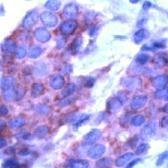 GTX15489 - Osteopontin / SPP1