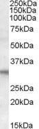 GTX15715 - FHL2 / SLIM3