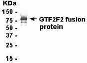GTX15862 - GTF2F1 / RAP74
