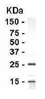 GTX15863 - High Density Lipoprotein / HDL