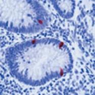 GTX16007 - Serotonin receptor 5A (HTR5A)