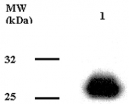 GTX16086 - Adiponectin