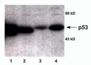 GTX16121 - TP53 / p53