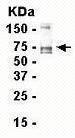 GTX16290 - Tenascin / TNC / HXB