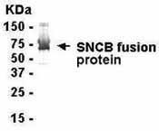 GTX16420 - Beta-Synuclein / SCNB