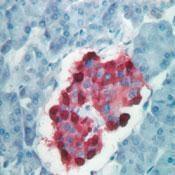 GTX17064 - Chromogranin A