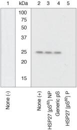 GTX17937 - HSPB1 / HSP27