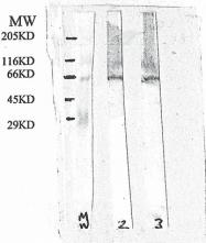 GTX18041 - Presenilin-2