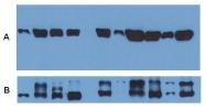 GTX18247 - alpha Tubulin / TUBA1B