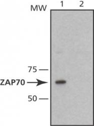 GTX18371 - ZAP70