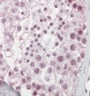 GTX19036 - Pescadillo homolog (PES1)