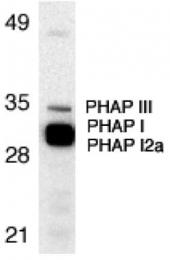 GTX19281 - ANP32A