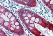 GTX20669 - Cytokeratin 18