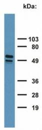 GTX20670 - Cytokeratin 7