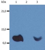 GTX20759 - Beta-2-microglobulin