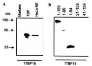 GTX20818 - TBP (TATA-box-binding protein)