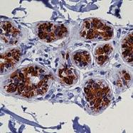 GTX20847 - Cytokeratin 8