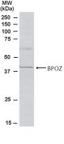 GTX21077 - ABTB1