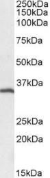 GTX21310 - CD20