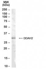 GTX21383 - DDAH2