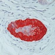 GTX21385 - Cytokeratin 15