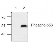 GTX21431 - TP53 / p53
