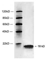 GTX21790 - Histone H2B
