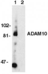 GTX21997 - CD156c / ADAM10