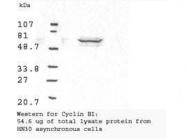 GTX22096 - Cyclin B1