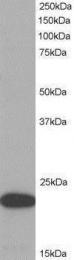 GTX22236 - CARD5 / PYCARD / ASC