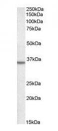 GTX22242 - Annexin A2 / ANXA2