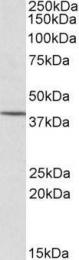 GTX22247 - CYTIP / PSCDBP