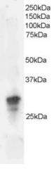 GTX22248 - Dysadherin / FXYD5