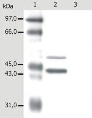 GTX22535 - Cytokeratin 5