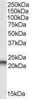 GTX22634 - PEBP1 / RKIP