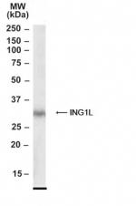 GTX22643 - ING2 / ING1L