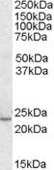GTX22718 - KLF16