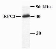 GTX23615 - RFC2 / RFC40
